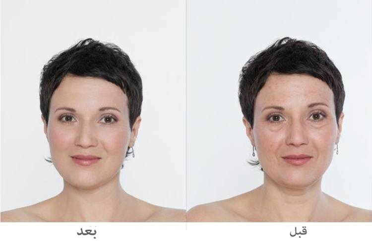 صورة عمليات تجميل الوجه بالليزر , معلومات عن استخدام الليزر في عمليات التجميل