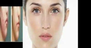 صور عمليات تجميل الوجه بالليزر , معلومات عن استخدام الليزر في عمليات التجميل