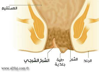 صورة علاج الشرخ والبواسير , علاج طبي للشرخ و البواسير بسهوله