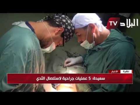 صورة بعد عملية استئصال الثدي , معلومات حول استئصال الثدي