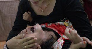 صور فوائد الختان للبنات , معلومات مهمة عن ختان البنات