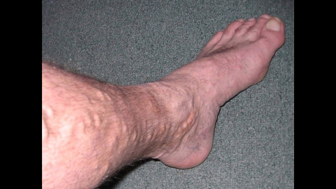 صورة علاج الدوالي بالليزر , افضل علاج لمن يعاني من الدوالي 1090 1