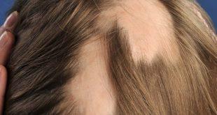 ما هو علاج الثعلبة في الراس , اسرار عن علاج الثعلبة عند الرجال والحريم