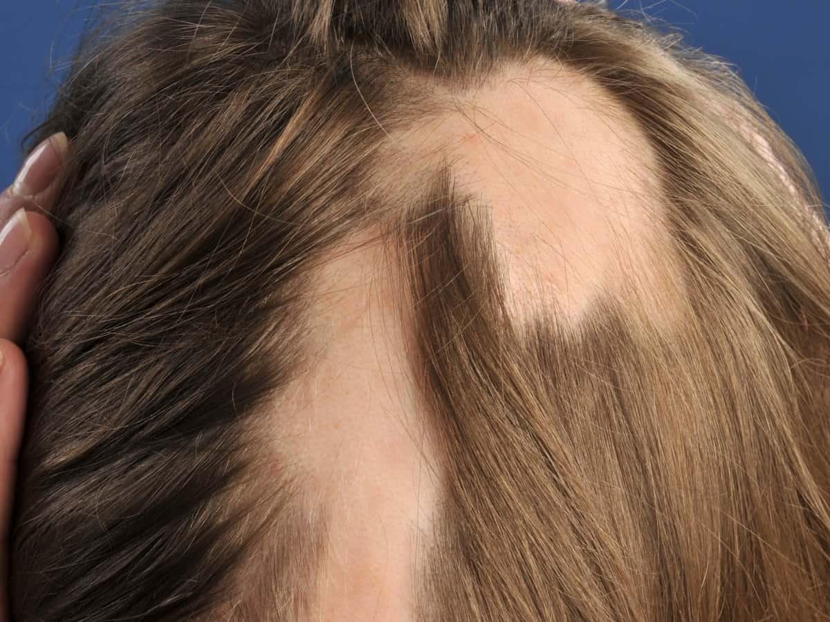 صورة ما هو علاج الثعلبة في الراس , اسرار عن علاج الثعلبة عند الرجال والحريم