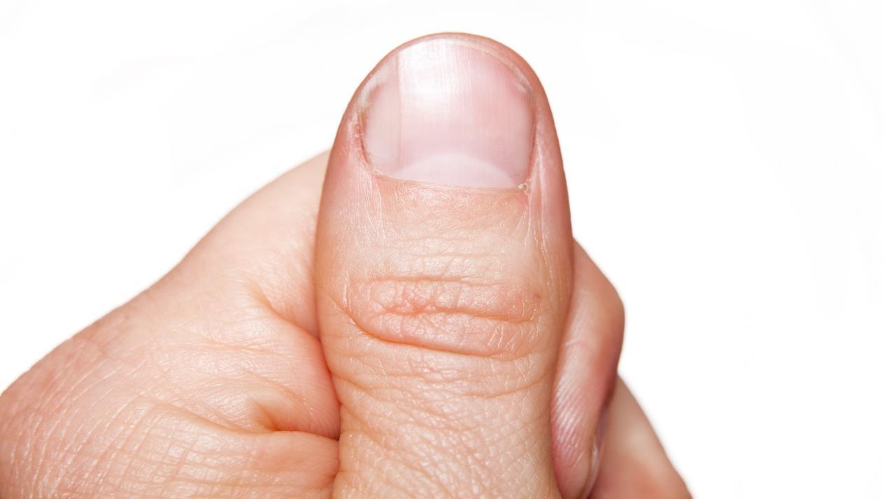 صور علاج الاظافر المتعرجة , تعرف على اسهل علاج الاظافر