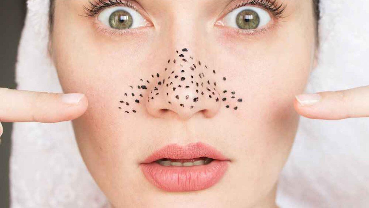 صورة التخلص من الحبوب السوداء , كيف تتخلص من الحبوب السوداء التي تكون في الوجه