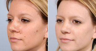 صور ازالة الشامات من الوجه , طريقة ممتزه للتخلص من الشامات التي تكون في الوجه