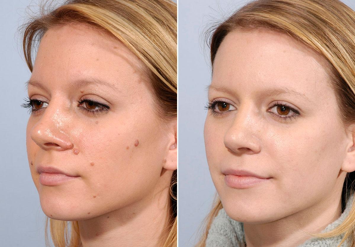 صورة ازالة الشامات من الوجه , طريقة ممتزه للتخلص من الشامات التي تكون في الوجه