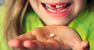 صورة تفسير حلم وقوع الاسنان , تقع اسنان في المنام و لا اعرف ما السبب