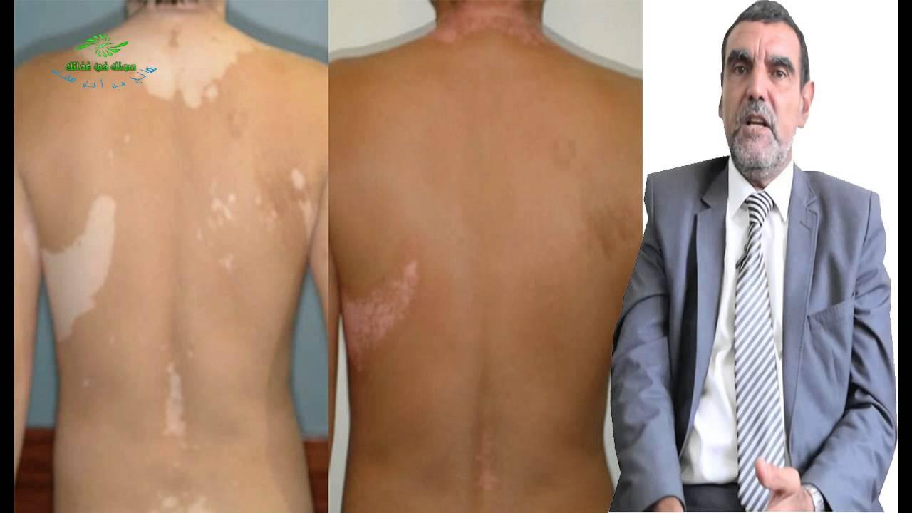 صورة اسباب مرض البرص , تعرف على اعرض مرض البرص